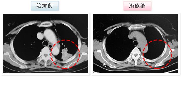 乳がん治療 症例写真