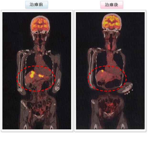 大腸がん 症例写真