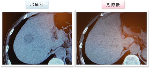 大腸がん 症例写真2