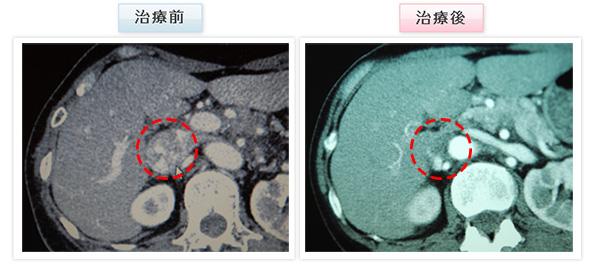 膵臓がん 症例写真